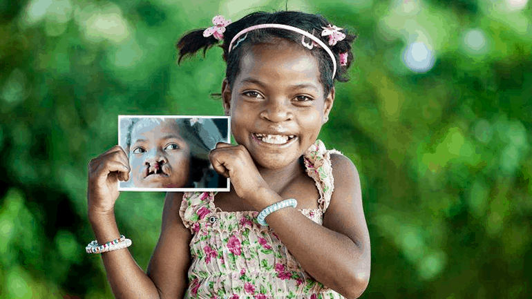 'Operation Smile' – can you help create a sea of smiles ?!